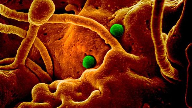 Una nueva y misteriosa neumonía viral aparece en China y ya causó decenas de infectados