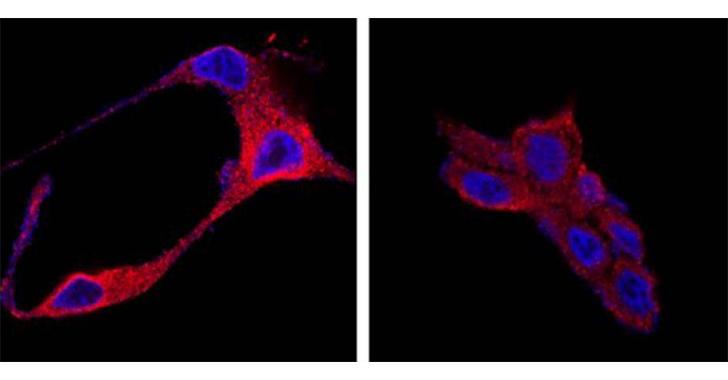 Usan nanopartículas orgánicas para destruir las células tumorales del cáncer de próstata