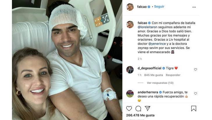 Falcao confirma que está bien tras fractura de pómulo durante entrenamiento