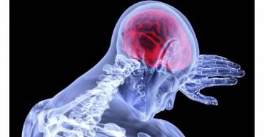 accidentes-cerebrovasculares-segunda-causa-de-muerte-en-el-mundo